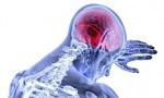 Leitender Oberarzt (w/m/d) für Neurologie