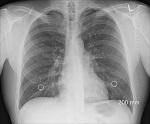 Facharzt (m/w/d) für Innere Medizin - Pneumologie als Oberarzt (m/w/d)